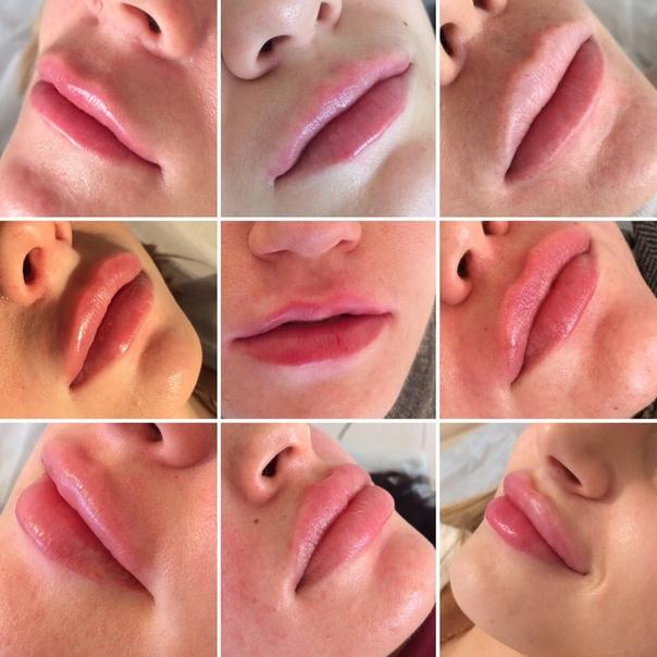 Контурная пластика губ: фото фатальных ошибок и рекомендации, как все сделать правильно.