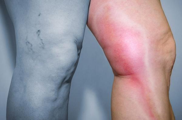 Тромбофлебит вен нижних конечностей - симптомы, причины развития, лечение
