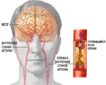 Лечение церебрального атеросклероза сосудов головного мозга народными и лекарственными средствами