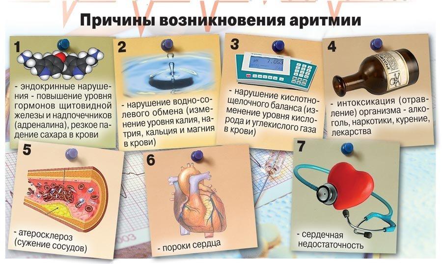 Аритмия сердца – симптомы, причины, лечение