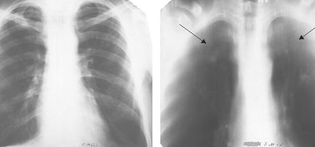 Туберкулема легких — что это такое и чем она опасна?