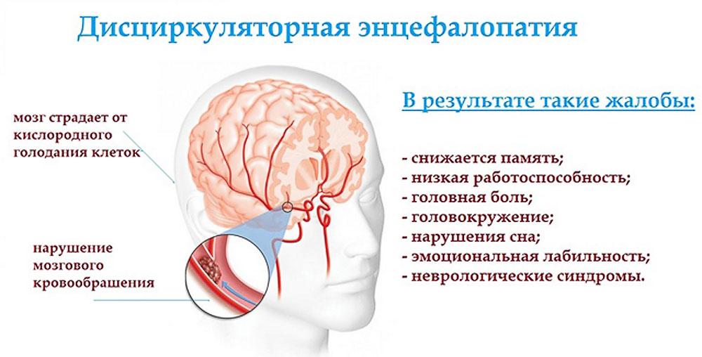 Дисциркуляторная энцефалопатия 2 степени (дэп): что это такое и сколько можно прожить?