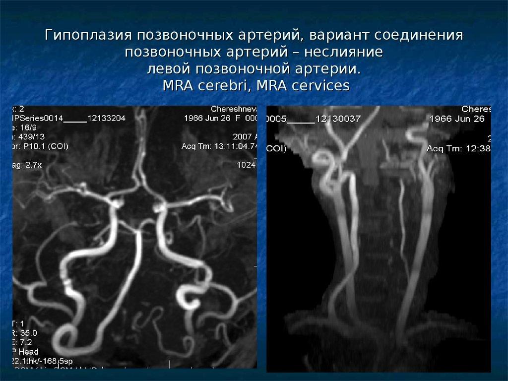 Гипоплазия правой позвоночной артерии: в чем особенности и способы лечения