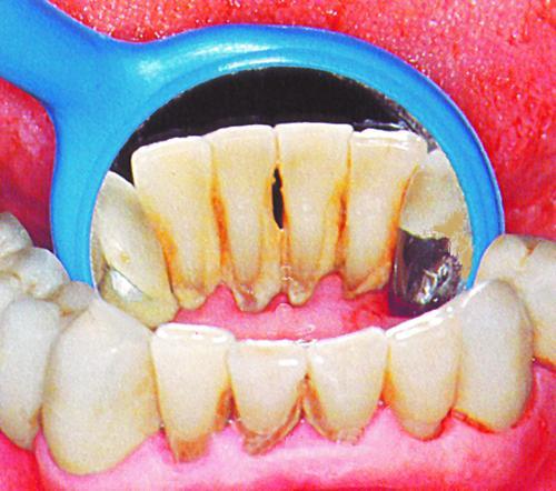 Как выглядит зубной камень у человека | фото, на зубах
