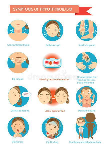 Аутоиммунный тиреоидит – что это такое? аутоиммунный тиреоидит щитовидной железы – симптомы и лечение