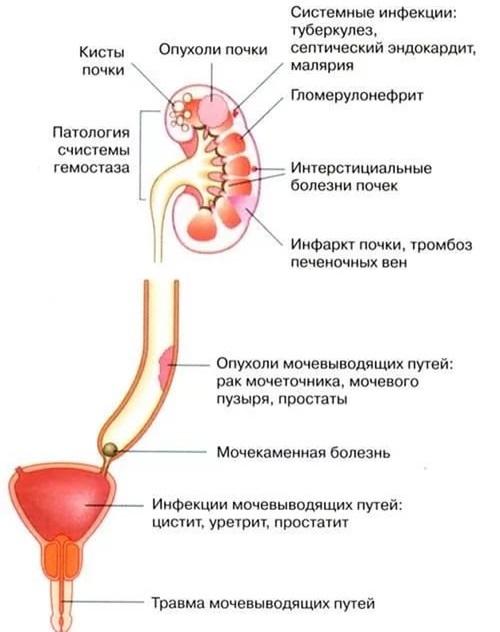 Почему возникает гематурия в моче и что это такое?