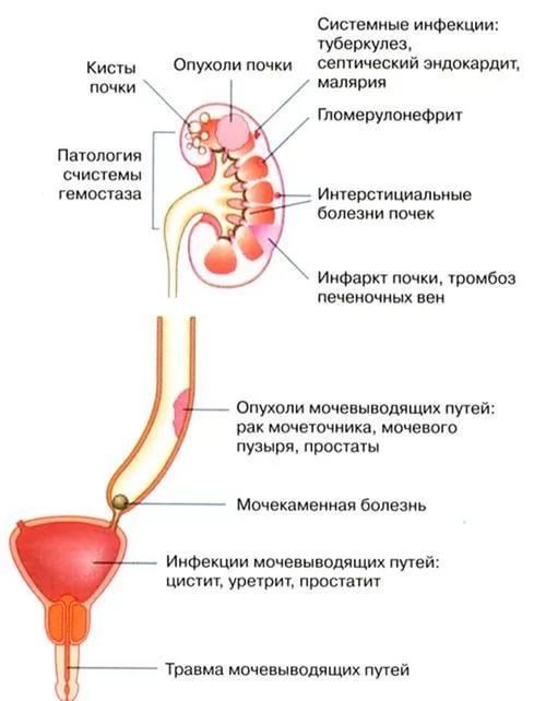 Макрогематурия: что это такое, лечение, препараты, признаки и симптомы | mfarma.ru