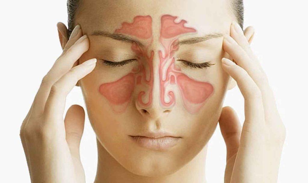 Фронтит: что это такое, симптомы заболевания, способы лечения, народные средства
