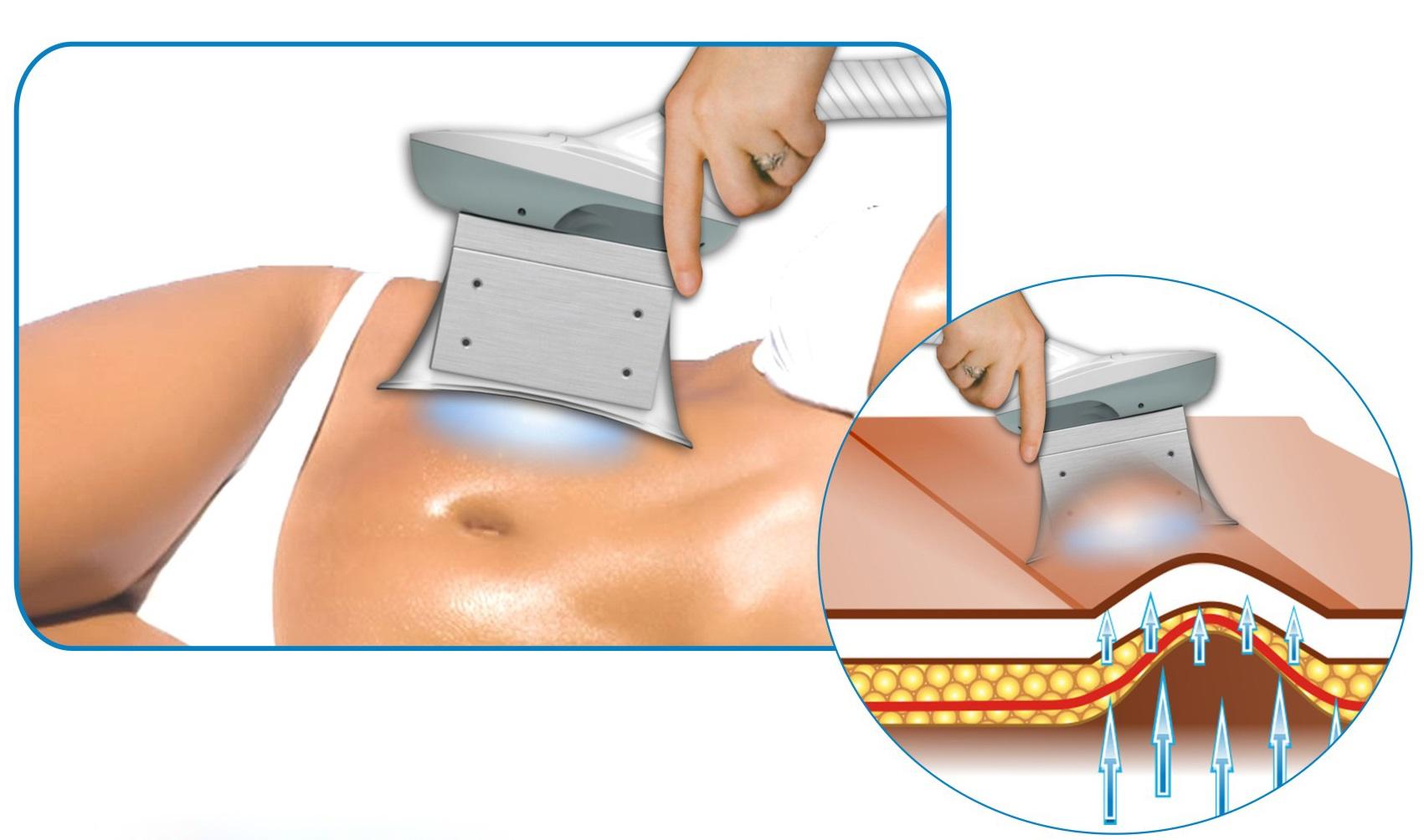 Что такое лазерный липолиз? плюсы и минусы процедуры