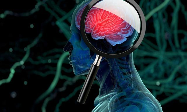Глиобластома головного мозга: степени и симптомы, причины и лечение опухоли