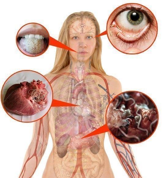 Глисты и другие паразиты в организме человека. симптомы, лечение. - здоровье прежде всего!