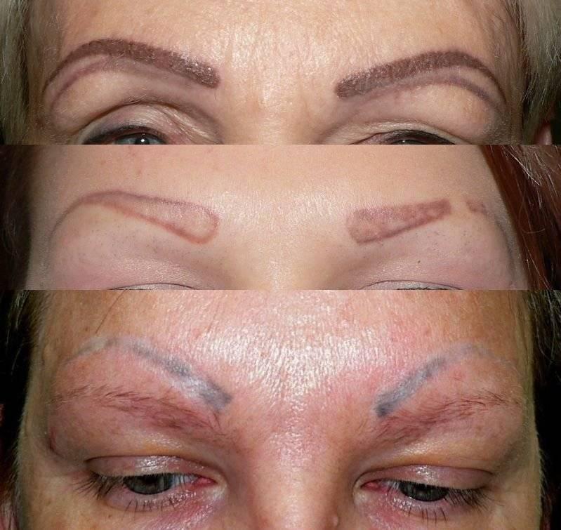 Перманентный макияж бровей: вся суть популярной процедуры
