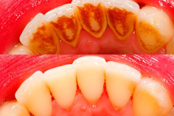 Зубной камень – причины появления, лечение и профилактика