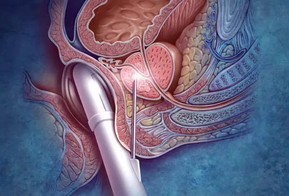Преждевременная эякуляция у мужчин: причины, средства и методы лечения