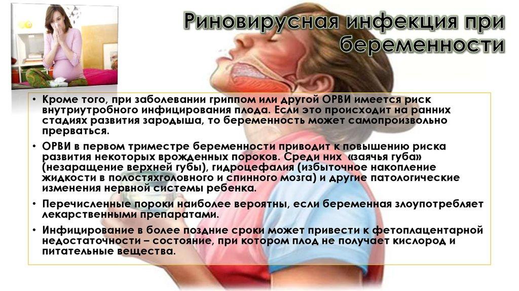 Риновирусная инфекция: симптомы и лечение, как лечить риновирусы у детей и взрослых