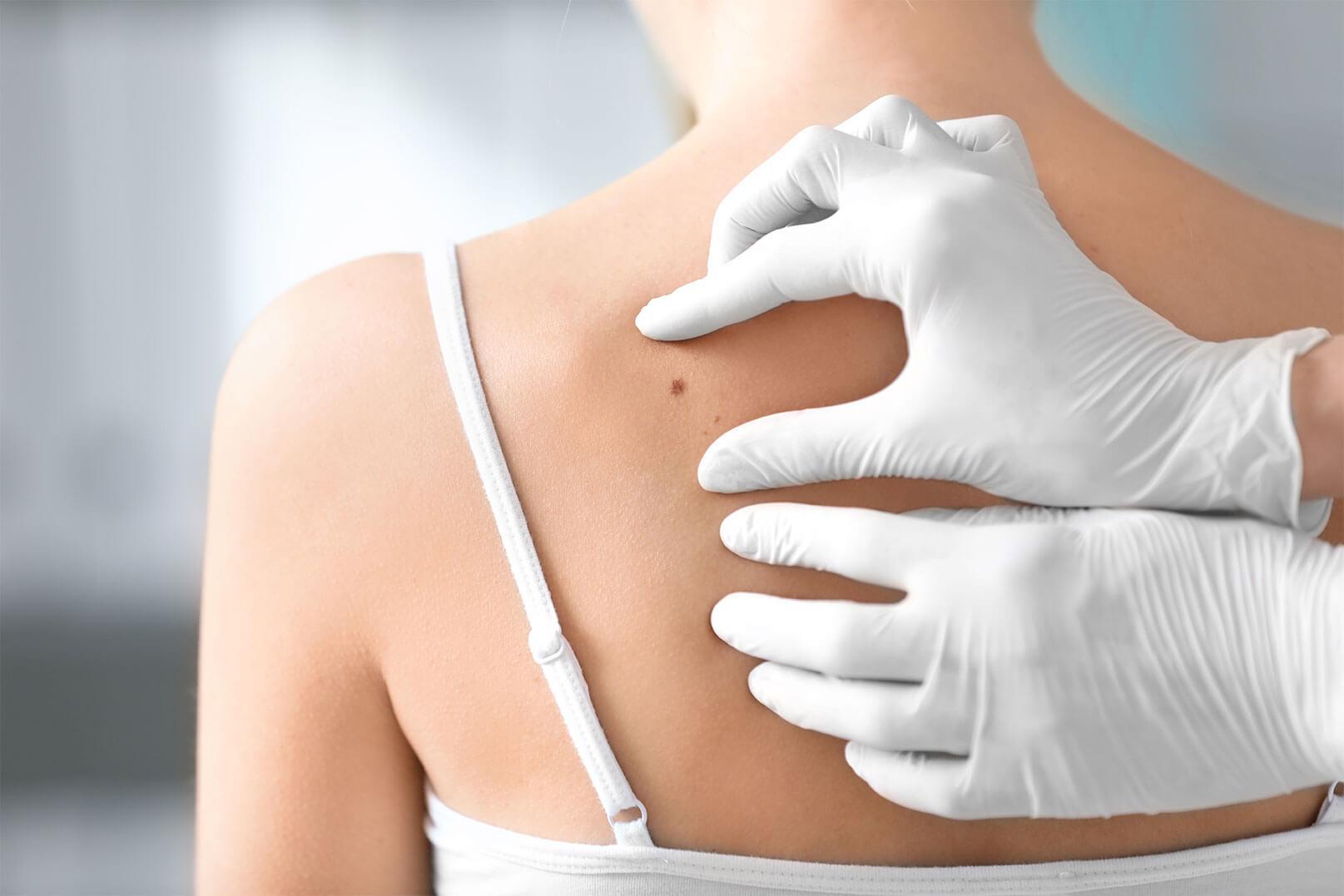 Что такое себорейная кератома, как ее распознать и лечить?