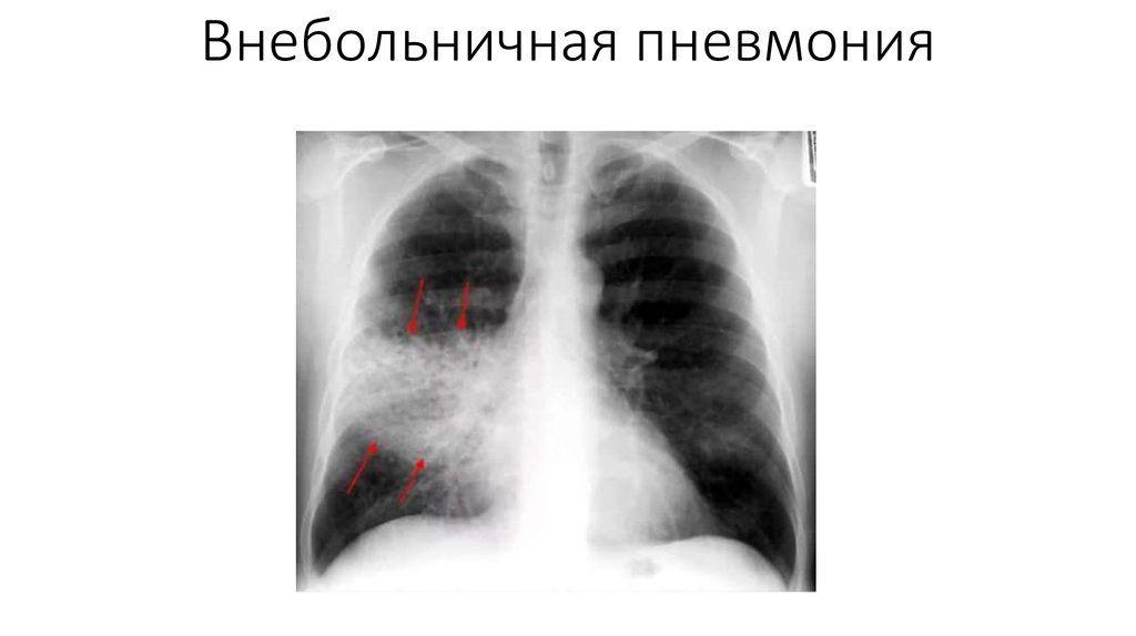 Все о внебольничной пневмонии у взрослых: что это такое, симптомы и способы лечения
