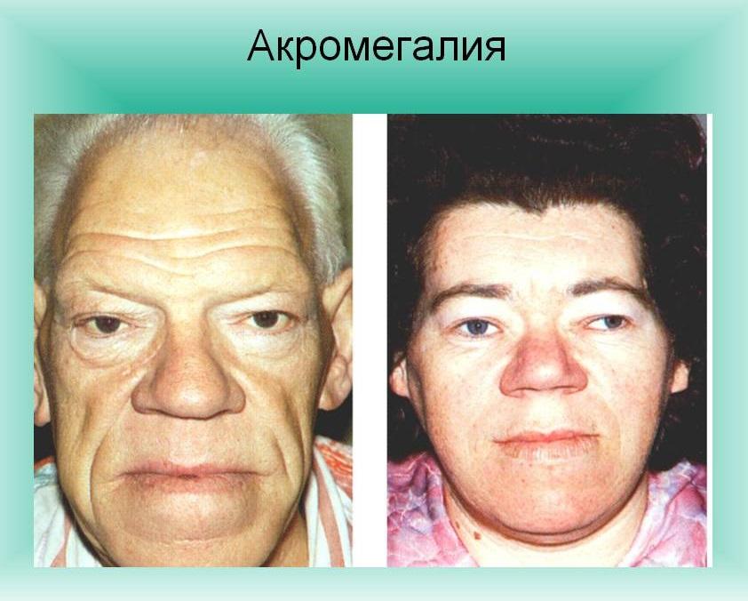 Акромегалия: причины, симптомы и лечение