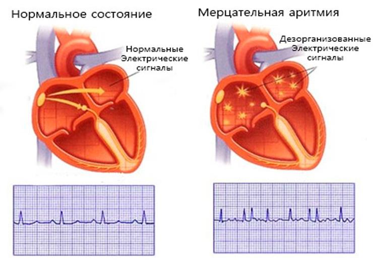 Мерцательная аритмия: симптомы и лечение, прогноз для жизни