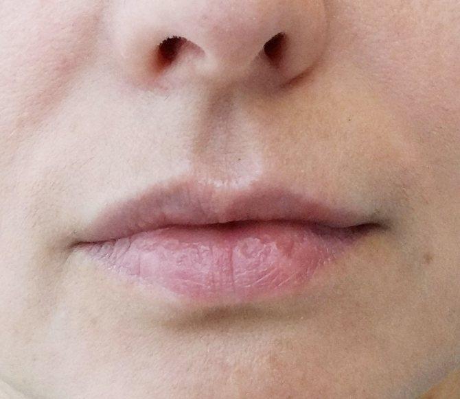 Что нельзя делать после увеличения губ: причины неудачного результата, сколько держится отек, синяки, шарики, герпес, комочки и другие последствия процедуры, алкоголь, курение, спорт и другие ограничения после коррекции