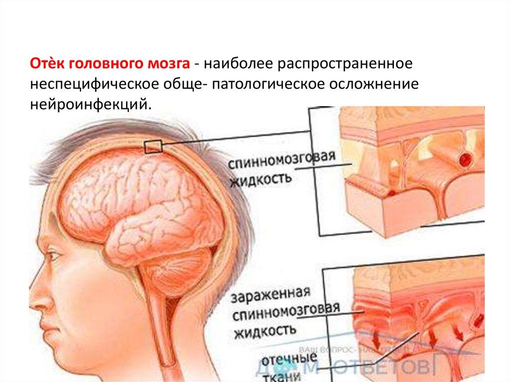Отёк и набухание головного мозга — большая медицинская энциклопедия