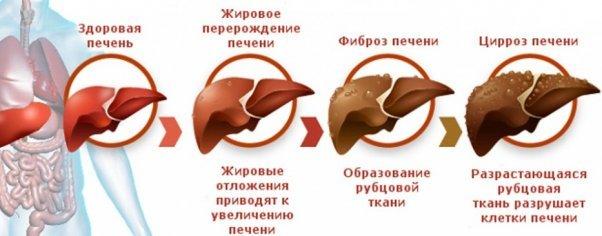 Лечение холангиокарциномы - медицинский портал eurolab