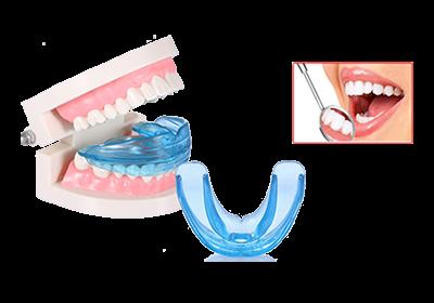 Все о преимуществах и недостатках трейнеров для зубов