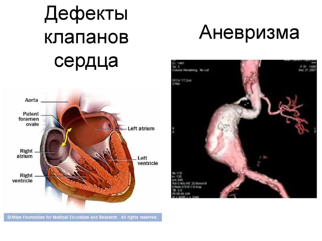 Аневризма сердца: признаки, тактика лечения