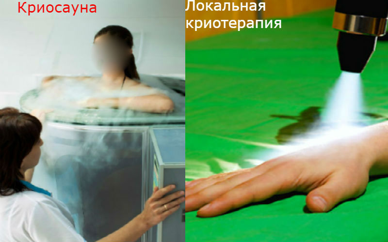 Что такое криотерапия. криосауна: лечение холодом