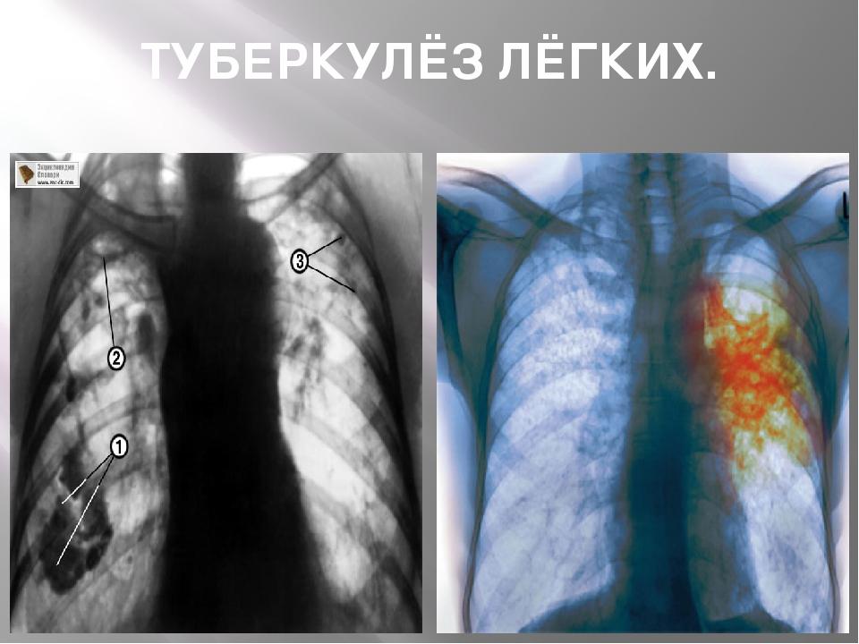 Метатуберкулезные изменения в легких что это такое