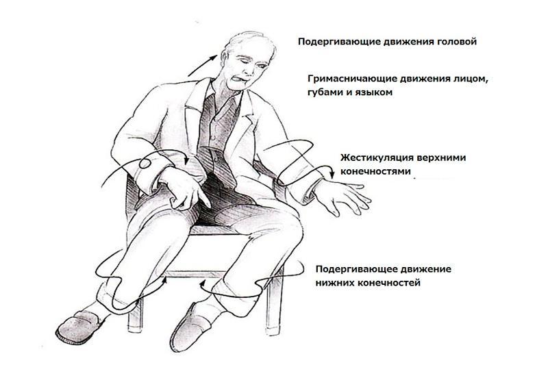 Хорея гентингтона (хантингтона) – что это за болезнь, симптомы, лечение, клинические рекомендации?