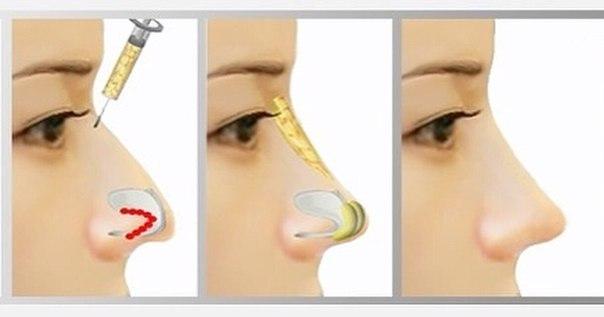 Ринопластика носа филлерами