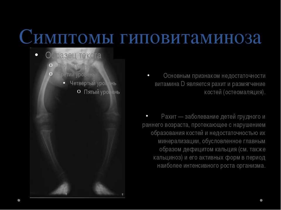 Гиповитаминоз - симптомы, причины, лечение, профилактика