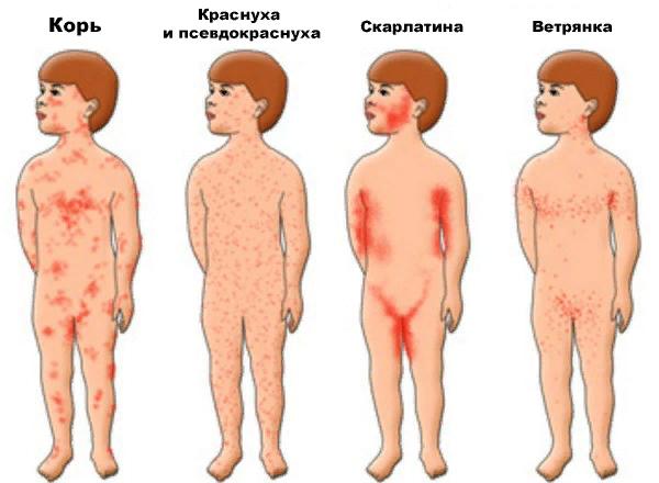 Виды сыпи (высыпаний) на коже, лице и теле – фото и комментарии