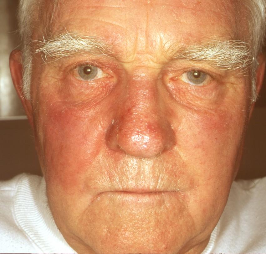 Венозная и артериальная гиперемия кожи: что это такое, причины, лечение, покраснение кожи лица у ребенка и взрослого
