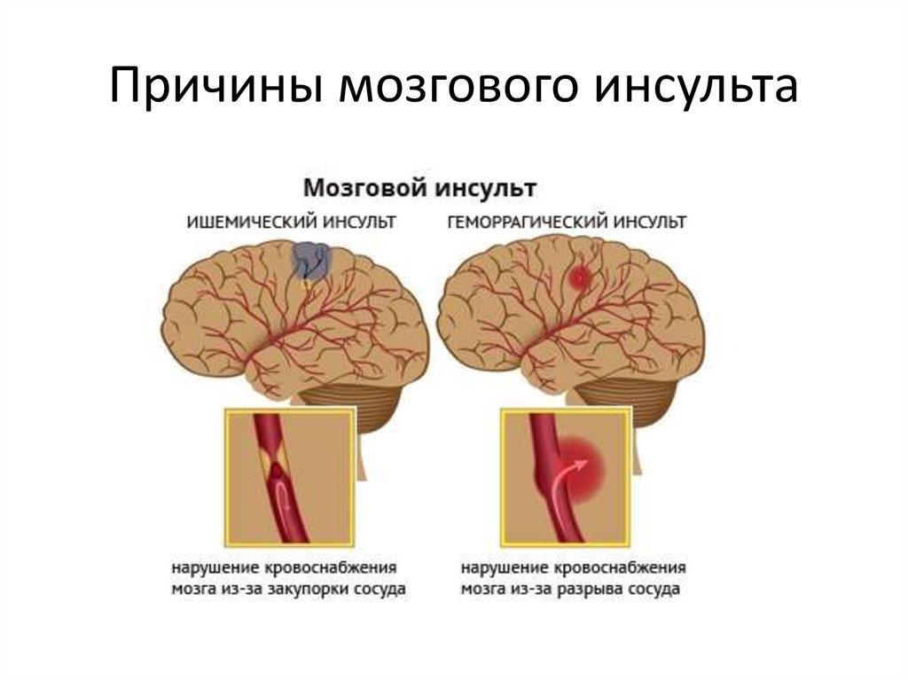 Ишемический инсульт - причины, симптомы, лечение, последствия