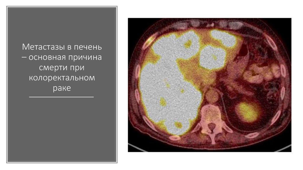 Метастатический рак, что такое метастазы