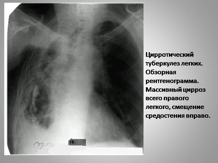 ✅ метатуберкулезные изменения в легких - что это такое? лечение - vrach-med.ru