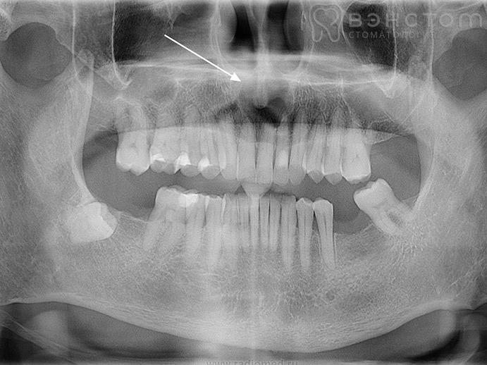Киста на корне зуба – симптомы, лечение, удаление