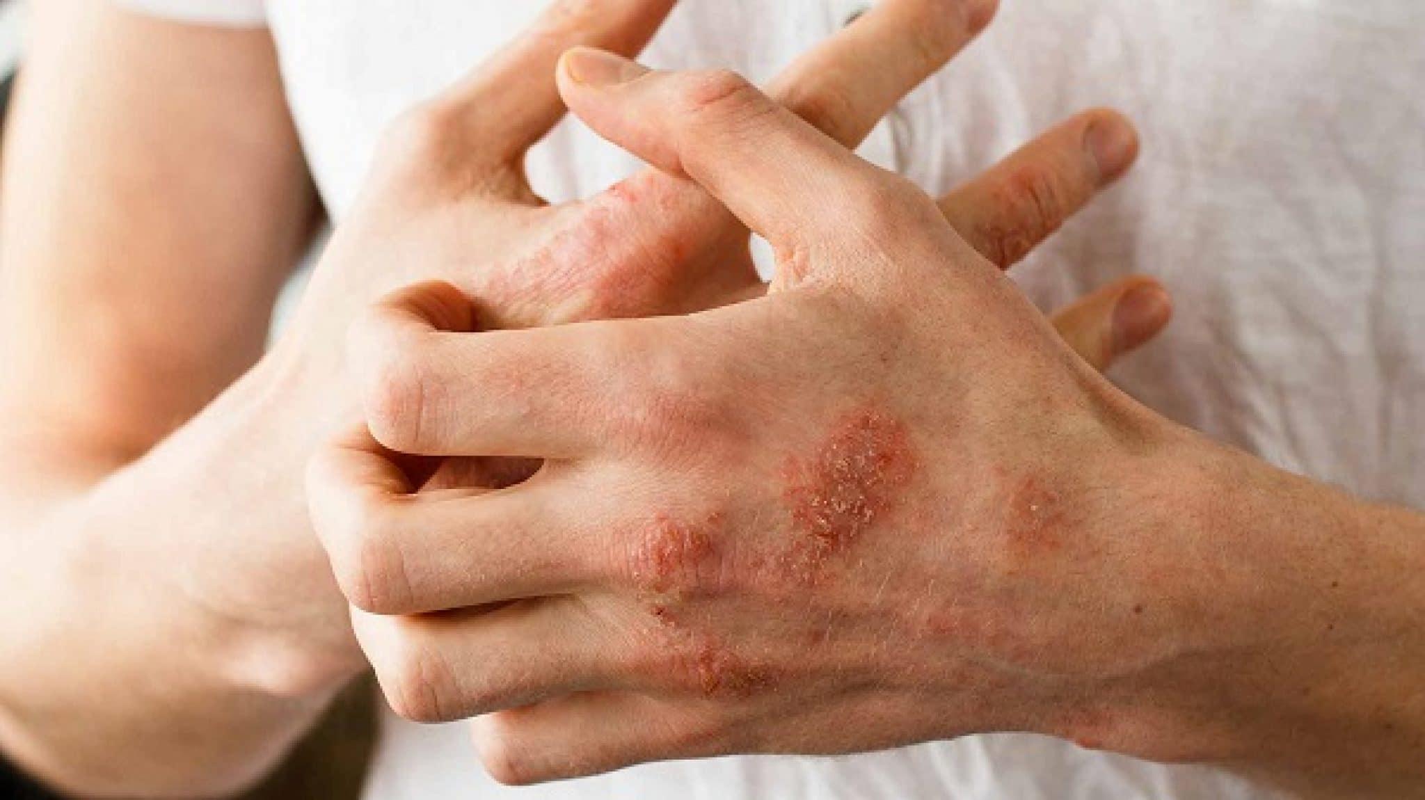 Псориаз не заразен, но передается: как и почему — полный ответ на вопрос