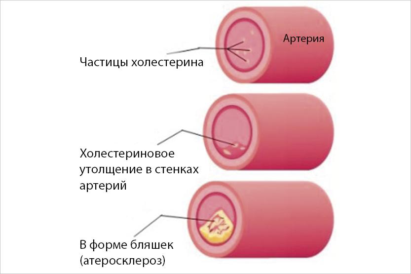 Что такое гиперхолестеринемия? причины и симптомы патологии, прогноз на жизнь