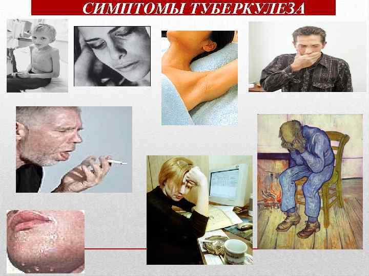Что такое туберкулёз и как его лечить чтобы устранить признаки и причины? — net-bolezniam.ru