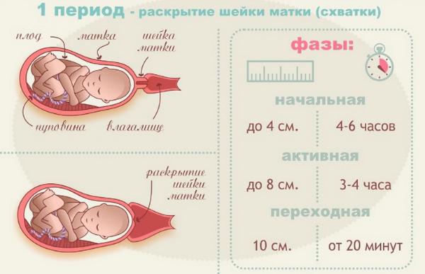 Схватки перед родами, первые роды, вторые роды – как понять что начались схватки? что такое схватки? как дышать при схватках и родах правильно?