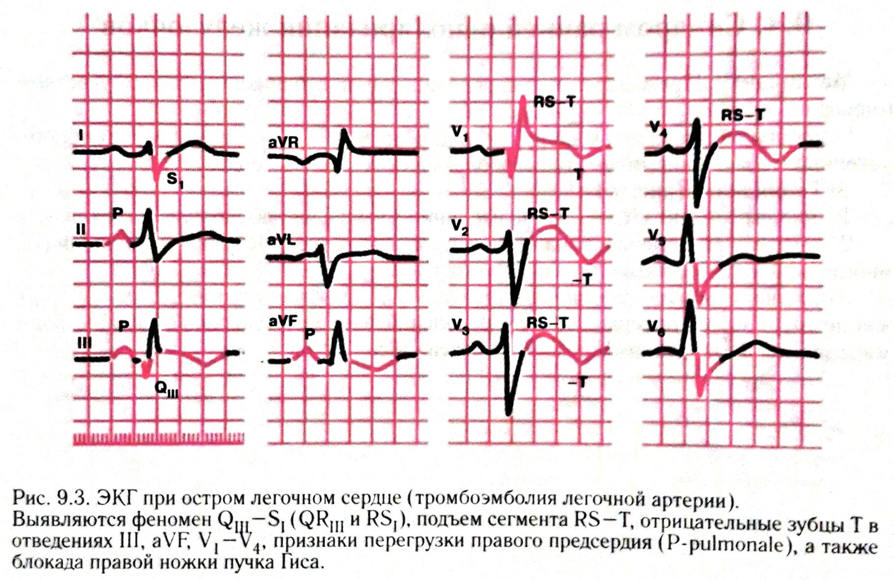 Проблемы после воспалительных процессов в грудной клетке — легочное сердце