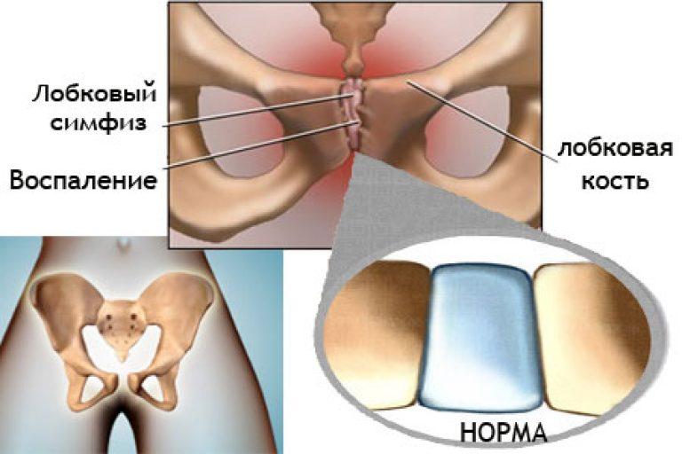 Симфизит после родов: как долго проходит, симптомы и лечение, последствия и упражнения при симфизите в домашних условиях