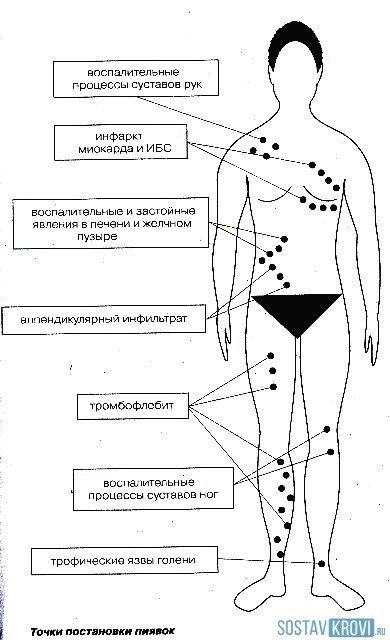Апитерапия или живое лекарство в улике