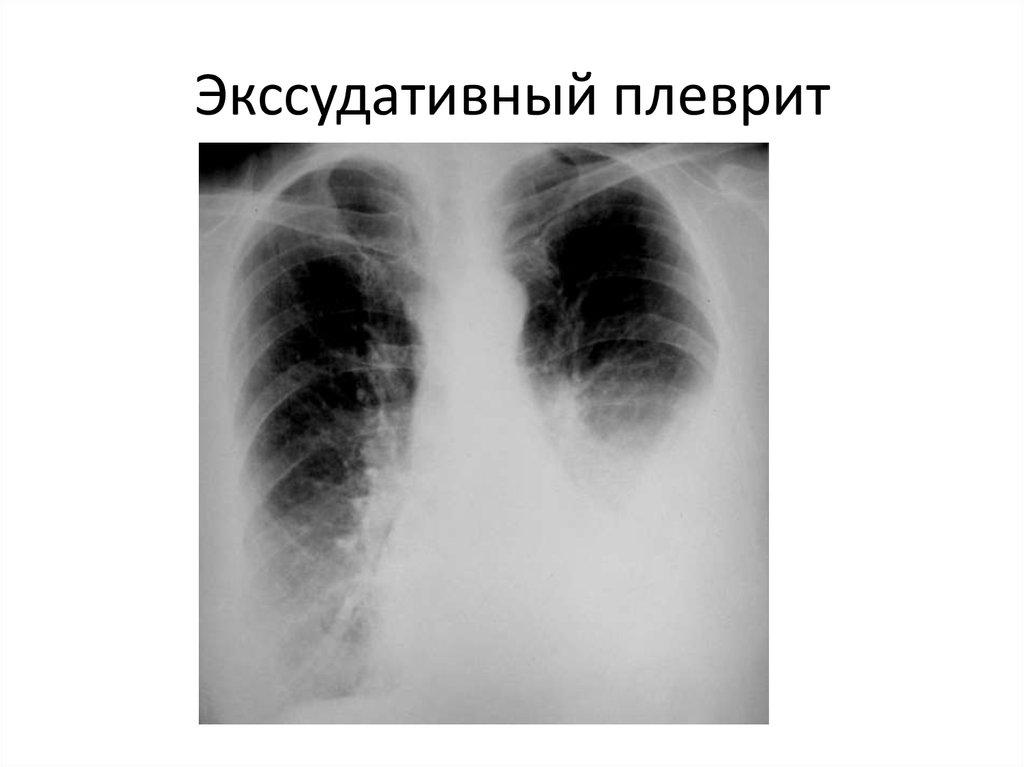 Плеврит — википедия с видео // wiki 2