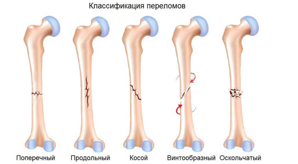 Что такое переломы костей