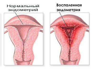 Эндометрит – острый и хронический. симптомы, причины, диагностика, лечение заболевания. :: polismed.com