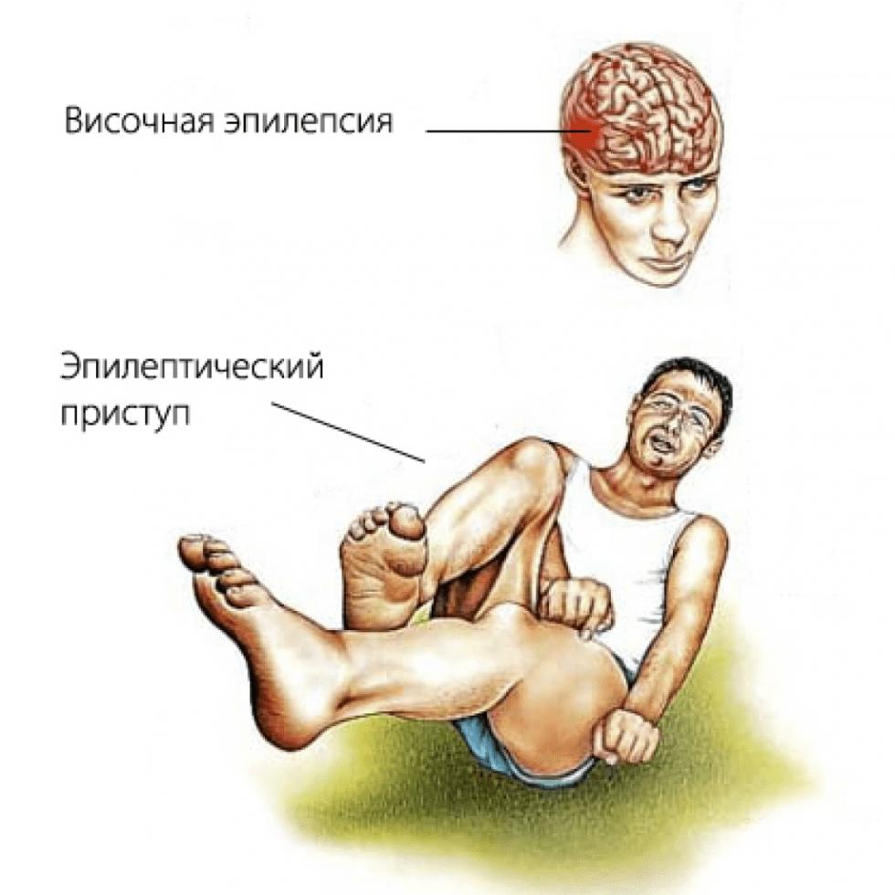 """""""ногу свело"""" - мышечные спазмы, судороги - невролог, психотерапевт - киев"""